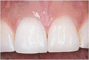 Efter en blegning indefra i tanden, som blev sat i gang hos tandlægen, lykkedes det i løbet af tre uger at lysne tanden.