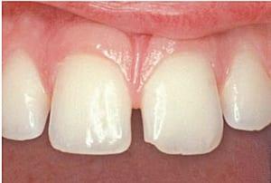 Mellemrummet mellem de to fortænder og det beskadigede hjørne på den ene tand generede patienten