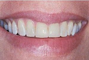 Her er der limet tynde porcelænsfacader på de to midterste fortænder, og gamle plastfyldninger i tænderne ved siden af er blevet skiftet til nye.