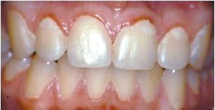 Tandkodsbetaendelse